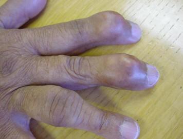 gout ที่มือ